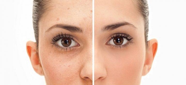 درمان دانه های سیاه روی بینی با روغن اسطوخودوس