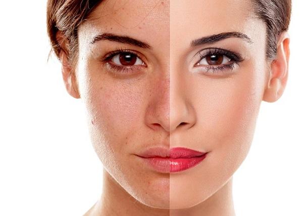 خواص ماسک گلاب برای پوست مو جوش و چاقی صورت