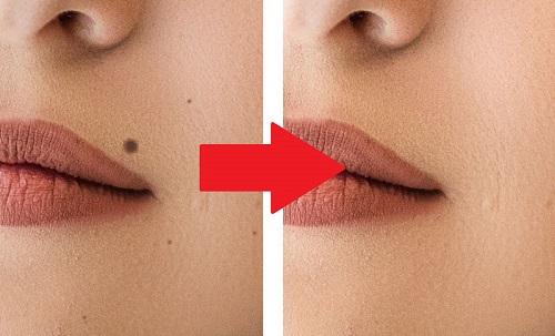 خال صورت و کاربرد انواع روش های طبیعی در حذف آنها