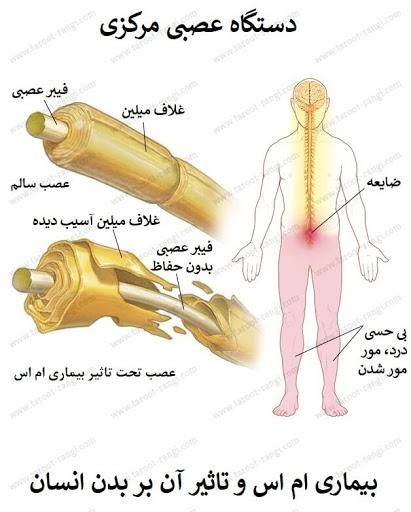 نشانه های بیماری ام اس MS