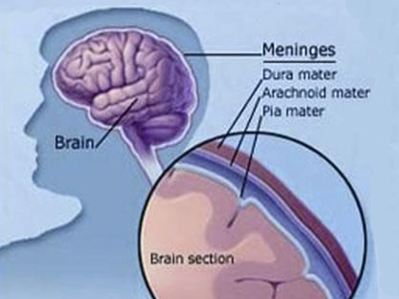 عوامل به وجود آمدن بیماری مننژیت