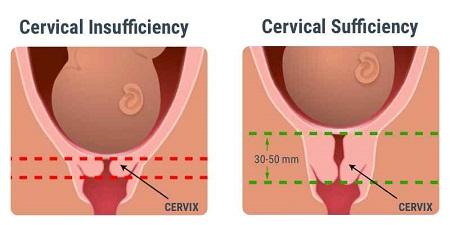 کوتاه شدن دهانه رحم در بارداری چیست