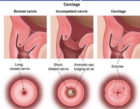 درمان کوتاه شدن دهانه رحم در بارداری - سرکلاژ یا دوختن دهانه رحم