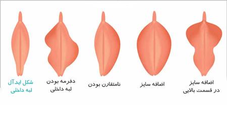 تفاوت های ظاهری واژن